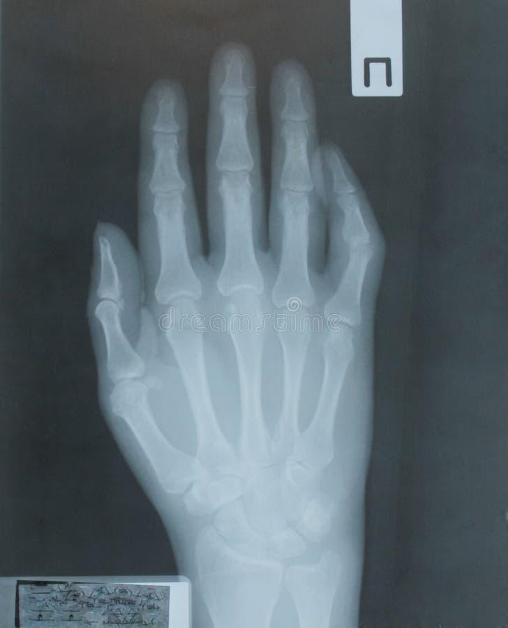 Ακτίνα X του χεριού του ασθενή στοκ φωτογραφίες