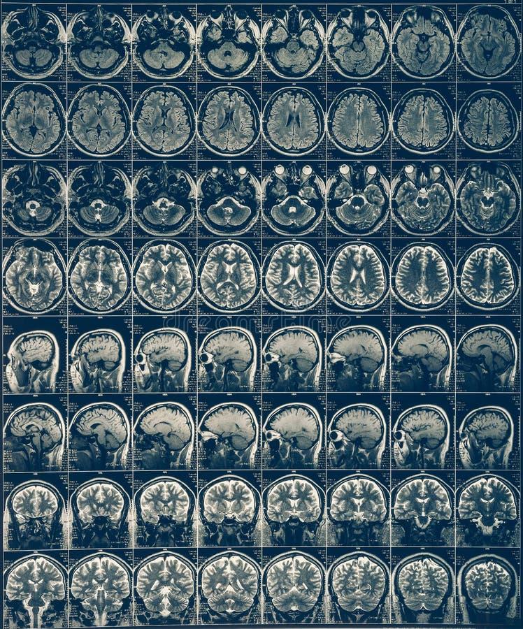 Ακτίνα X Mri ανίχνευσης εγκεφάλου ή απεικόνιση μαγνητικής αντήχησης του ανθρώπινου κεφαλιού, έννοια νευρολογίας στοκ εικόνα