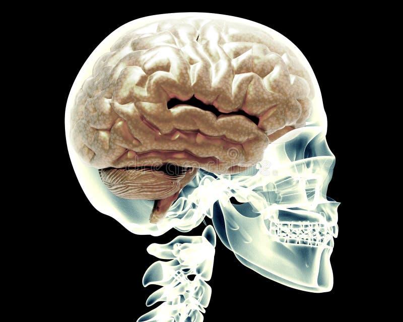 Ακτίνα X scull με τον εγκέφαλο ελεύθερη απεικόνιση δικαιώματος