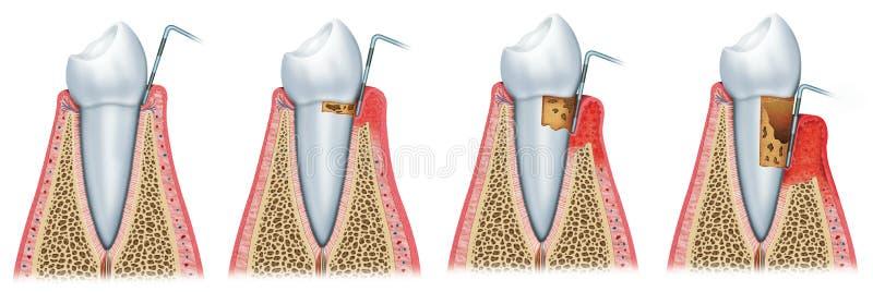Ανάπτυξη του periodontitis διανυσματική απεικόνιση