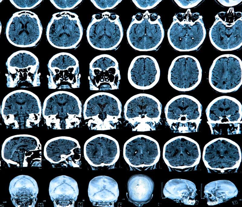 Ανίχνευση εγκεφάλου Mri στοκ φωτογραφία