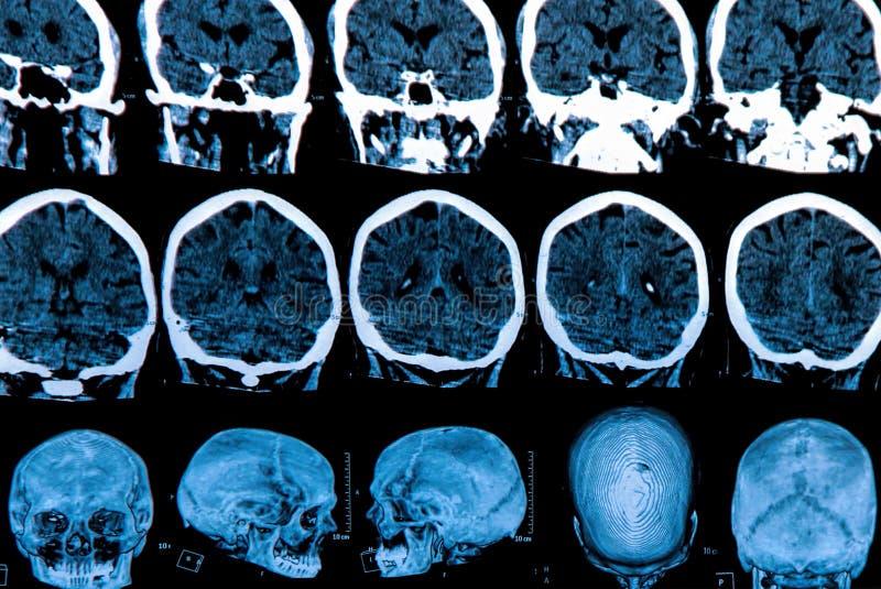 Ανίχνευση εγκεφάλου Mri στοκ εικόνες