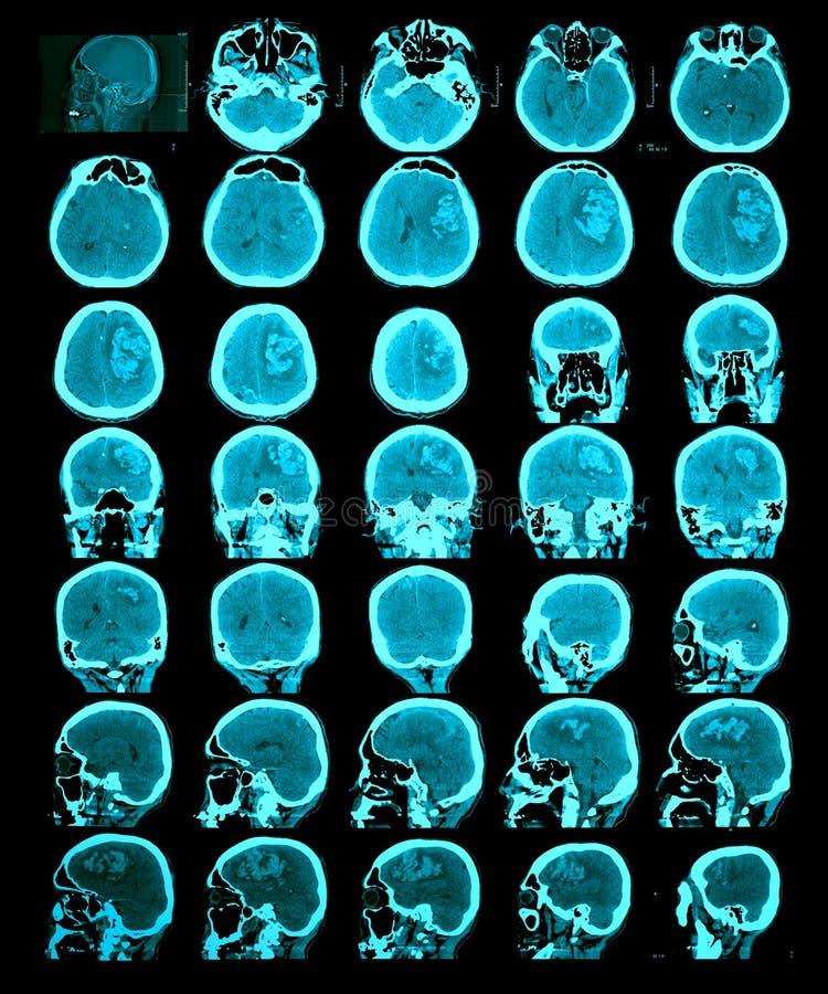 Ανίχνευση CT του εγκεφάλου. στοκ φωτογραφίες με δικαίωμα ελεύθερης χρήσης