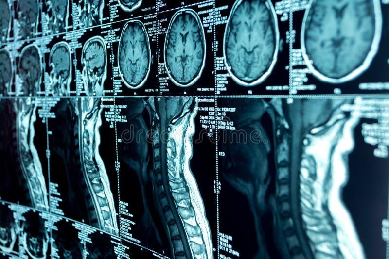 Ανίχνευση MRI του εγκεφάλου και της αυχενικής σπονδυλικής στήλης στοκ εικόνες