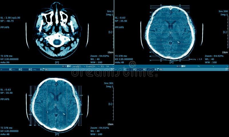 Ανίχνευση MRI του εγκεφάλου, σειρά εγκεφάλου ανίχνευσης CT, ιατρικό υπόβαθρο στοκ εικόνες με δικαίωμα ελεύθερης χρήσης
