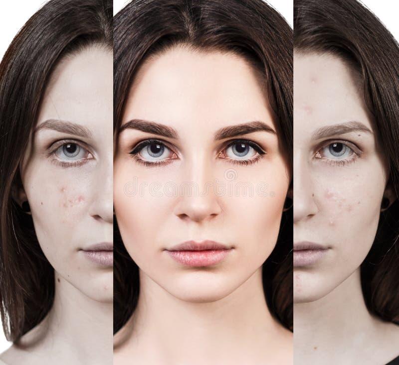 Αναγέννηση γυναικών από το κακό δέρμα ακμής που τελειοποιεί στοκ φωτογραφίες