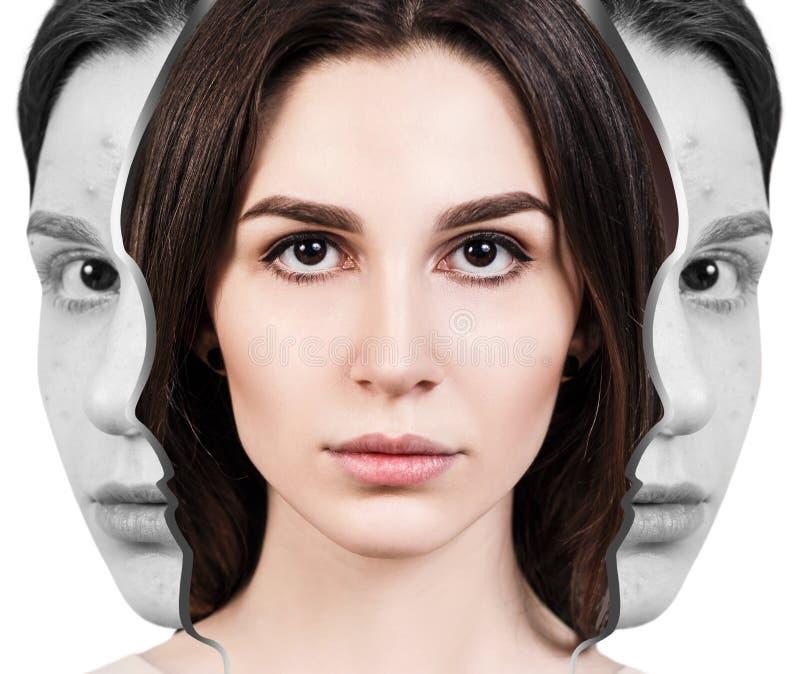 Αναγέννηση γυναικών από το κακό δέρμα ακμής που τελειοποιεί στοκ εικόνα