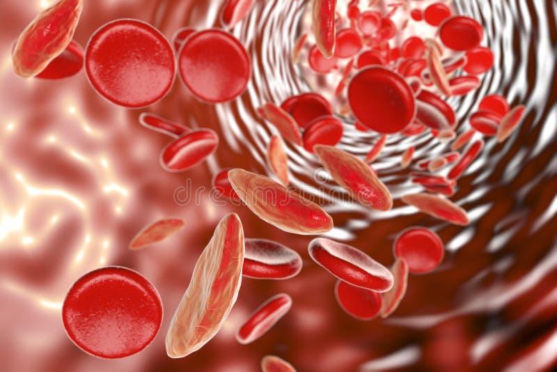 Αναιμία κυττάρων δρεπανιών διανυσματική απεικόνιση