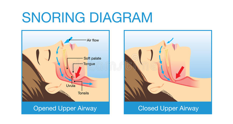 Ανατομία του ανθρώπινου εναέριου διαδρόμου snoring απεικόνιση αποθεμάτων