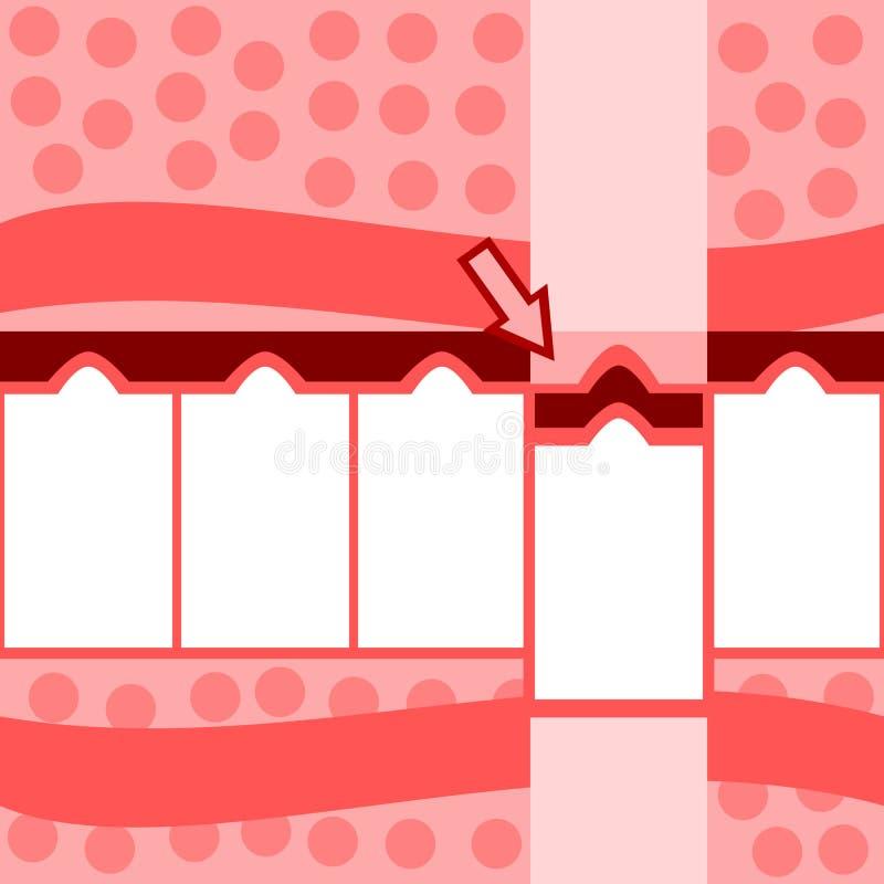 Αναδρομικές τυποποιημένες κόκκινες ρόδινες άσπρες πληροφορίες πέντε βημάτων γραφικές διανυσματική απεικόνιση