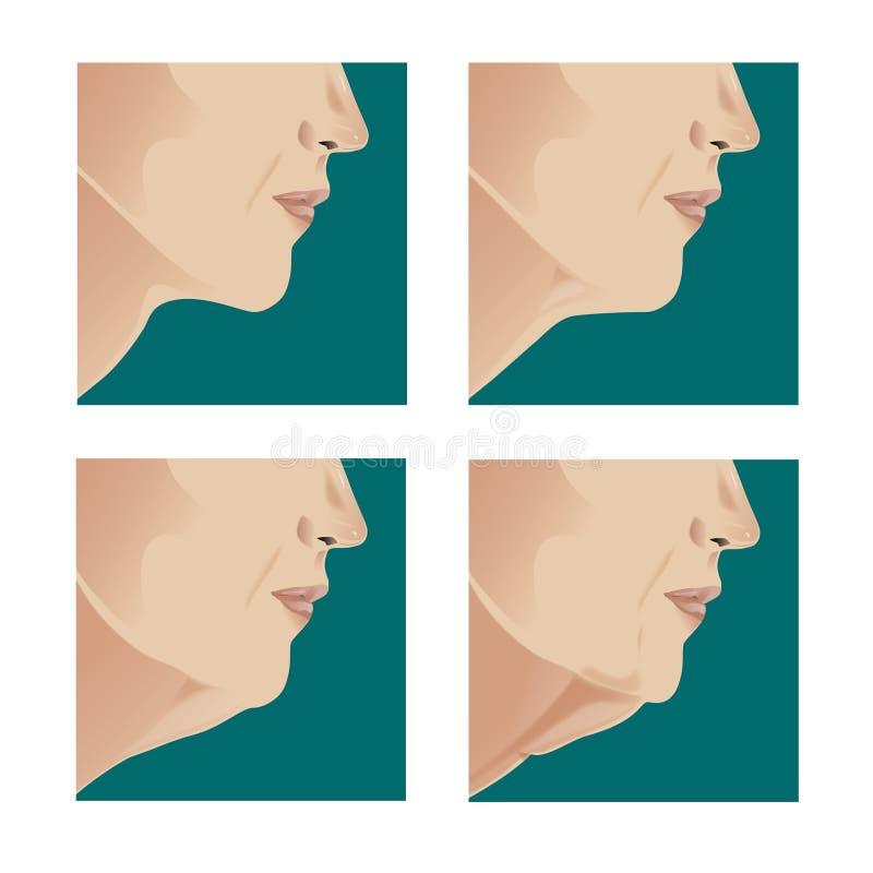 Ανελκυστήρας λαιμών διανυσματική απεικόνιση