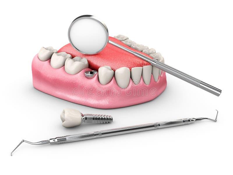 Ανθρώπινα δόντια και οδοντικό μόσχευμα τρισδιάστατη απεικόνιση ελεύθερη απεικόνιση δικαιώματος