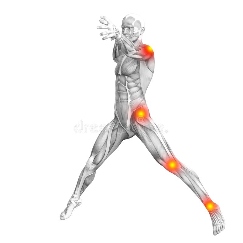 Ανθρώπινη ανάφλεξη καυτών σημείων ανατομίας κόκκινη κίτρινη διανυσματική απεικόνιση