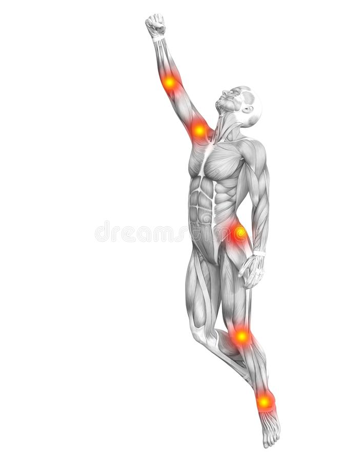 Ανθρώπινη ανάφλεξη σημείων μυών κόκκινη και κίτρινη ελεύθερη απεικόνιση δικαιώματος