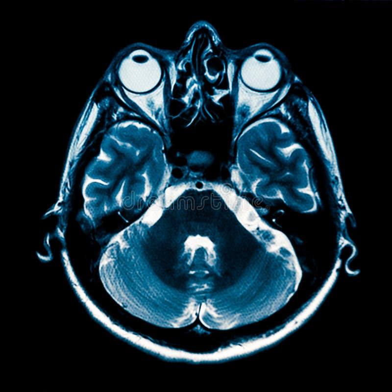 Ανθρώπινη ανίχνευση εγκεφάλου MRI στοκ φωτογραφία