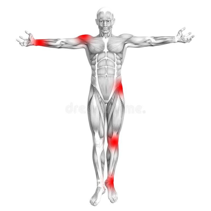 Ανθρώπινη ανατομία μυών με την ανάφλεξη καυτών σημείων ελεύθερη απεικόνιση δικαιώματος