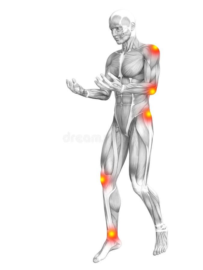 Ανθρώπινη ανατομία μυών με την ανάφλεξη καυτών σημείων διανυσματική απεικόνιση