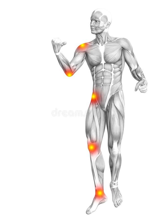 Ανθρώπινη ανατομία μυών με την ανάφλεξη ο καυτών σημείων απεικόνιση αποθεμάτων