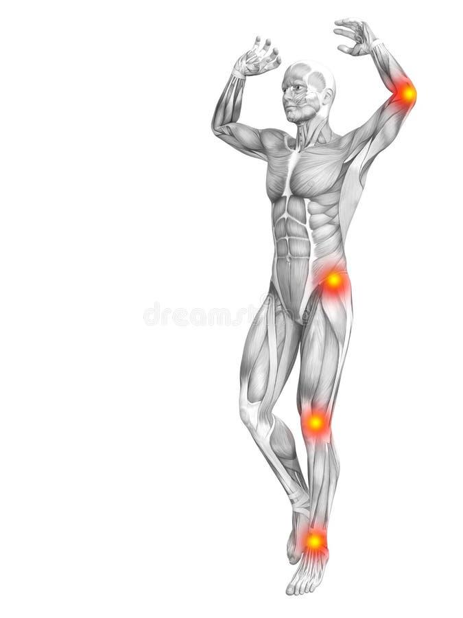 Ανθρώπινη ανατομία μυών με την κόκκινη κίτρινη ανάφλεξη καυτών σημείων απεικόνιση αποθεμάτων