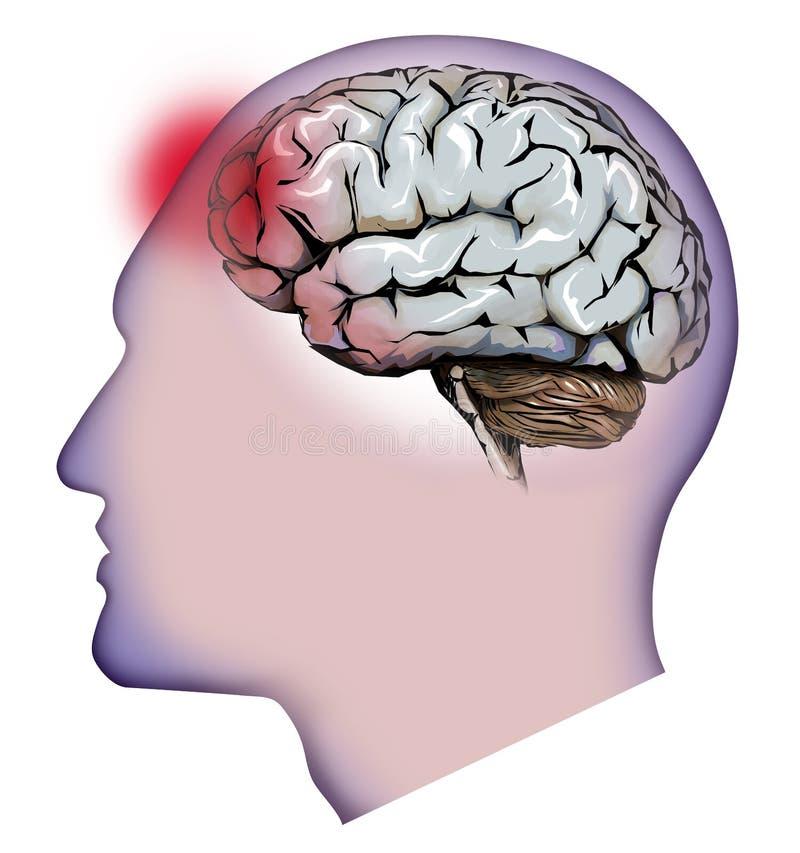 Ανθρώπινη εγκέφαλος, παρεγκεφαλίδα και πονοκέφαλοι Πονοκέφαλος διανυσματική απεικόνιση