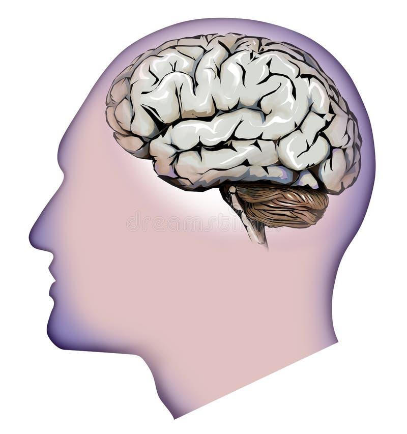 Ανθρώπινη εγκέφαλος, παρεγκεφαλίδα και πονοκέφαλοι Πονοκέφαλος ελεύθερη απεικόνιση δικαιώματος