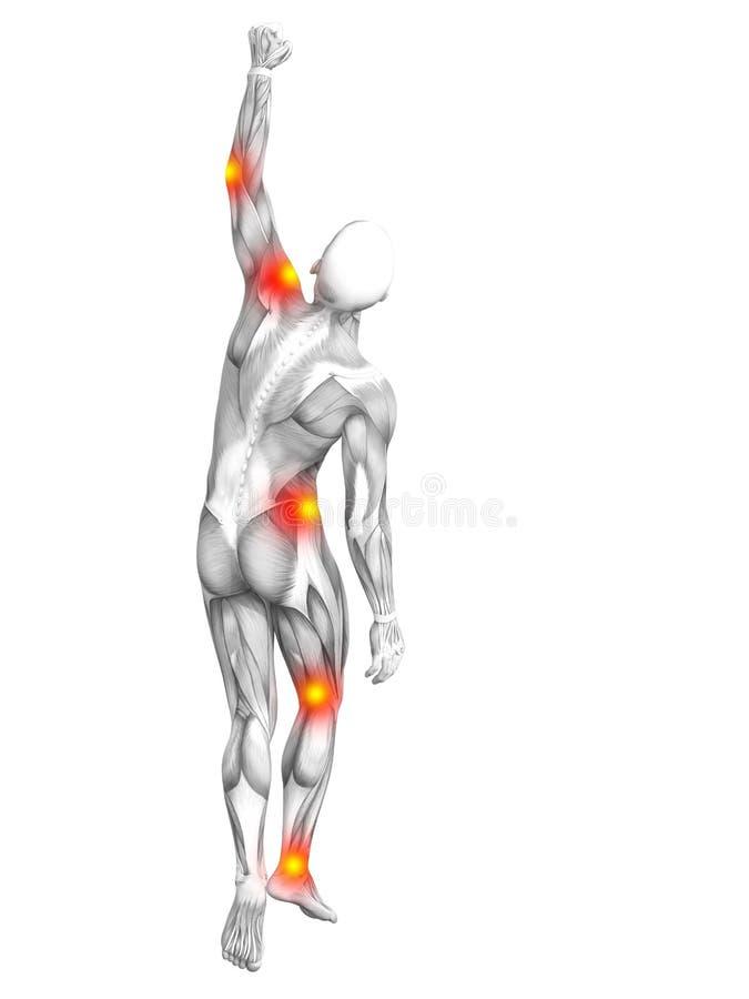 Ανθρώπινη μυών ανάφλεξη καυτών σημείων ανατομίας κόκκινη κίτρινη διανυσματική απεικόνιση