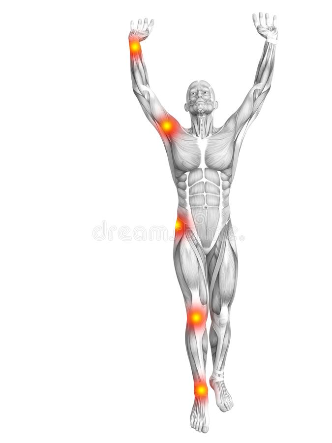 Ανθρώπινη μυών ανάφλεξη καυτών σημείων ανατομίας κόκκινη κίτρινη απεικόνιση αποθεμάτων