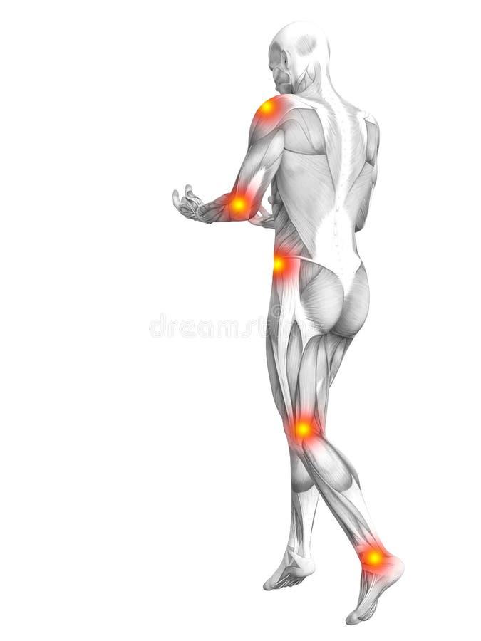 Ανθρώπινη μυών ανάφλεξη καυτών σημείων ανατομίας κόκκινη κίτρινη ελεύθερη απεικόνιση δικαιώματος
