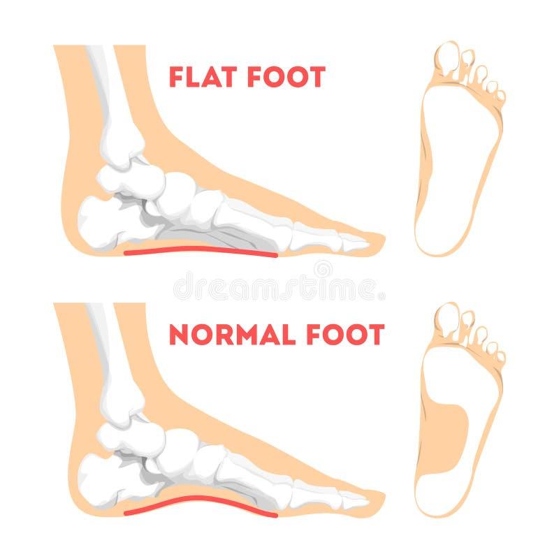 Ανθρώπινη παθολογία ποδιών infographic Επίπεδη ανατομία ποδιών απεικόνιση αποθεμάτων