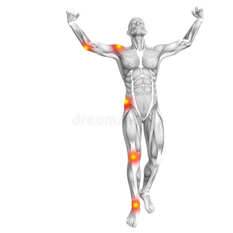 Ανθρώπινος μυς με την κόκκινη κίτρινη ανάφλεξη καυτών σημείων απεικόνιση αποθεμάτων