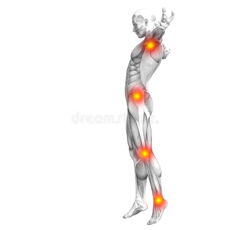 Ανθρώπινος μυς με την κόκκινη κίτρινη ανάφλεξη καυτών σημείων ελεύθερη απεικόνιση δικαιώματος