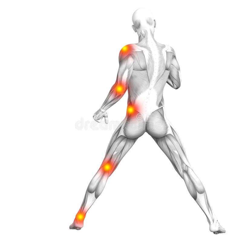 Ανθρώπινος μυς με την κόκκινη κίτρινη ανάφλεξη καυτών σημείων διανυσματική απεικόνιση