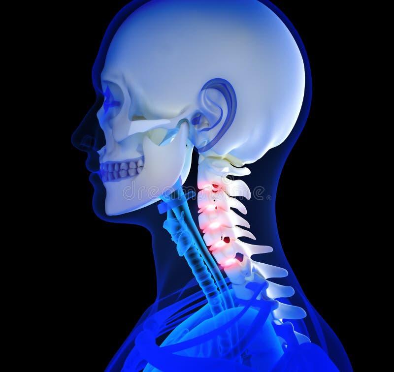 Ανθρώπινος πόνος λαιμών απεικόνιση αποθεμάτων