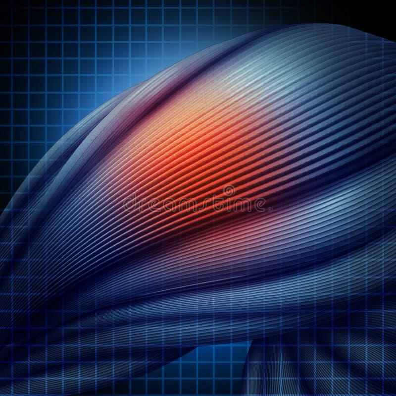 Ανθρώπινος τραυματισμός μυών διανυσματική απεικόνιση