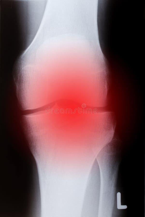 Ανθρώπινο γόνατο στο μέτωπο στοκ φωτογραφία με δικαίωμα ελεύθερης χρήσης