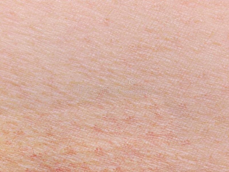 ανθρώπινο δέρμα στοκ εικόνες