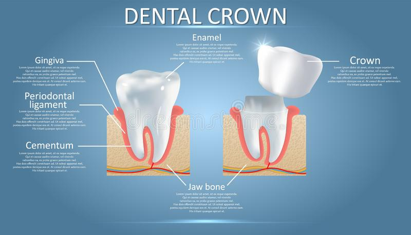 Ανθρώπινο δόντι και οδοντική κορώνα, διανυσματική εκπαιδευτική αφίσα απεικόνιση αποθεμάτων