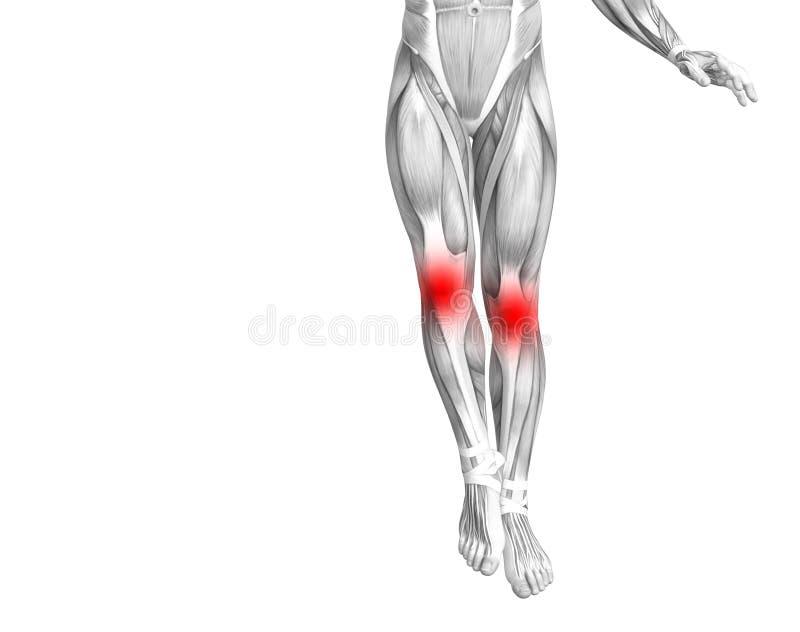 Ανθρώπινο κόκκινο ανατομίας γονάτων - ανάφλεξη καυτών σημείων απεικόνιση αποθεμάτων