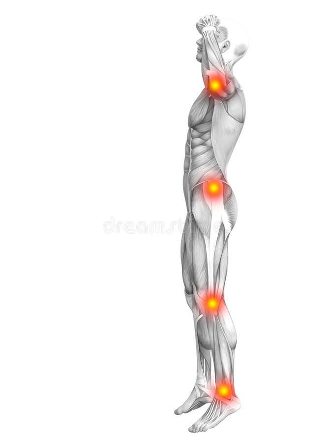 Ανθρώπινο κόκκινο ανατομίας μυών - ανάφλεξη καυτών σημείων απεικόνιση αποθεμάτων
