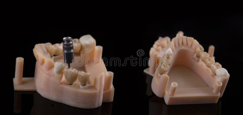 Ανθρώπινο μόσχευμα δοντιών βουρτσίζοντας διάνυσμα δοντιών κατσικιών έννοιας οδοντικό Κεραμικές ανθρώπινες δόντια ή οδοντοστοιχίες στοκ εικόνα με δικαίωμα ελεύθερης χρήσης