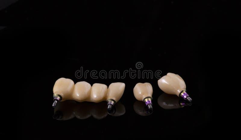 Ανθρώπινο μόσχευμα δοντιών βουρτσίζοντας διάνυσμα δοντιών κατσικιών έννοιας οδοντικό Κεραμικές ανθρώπινες δόντια ή οδοντοστοιχίες στοκ εικόνες