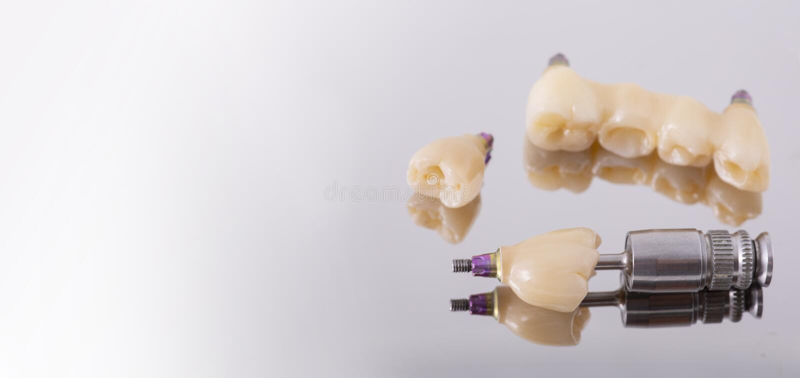 Ανθρώπινο μόσχευμα δοντιών βουρτσίζοντας διάνυσμα δοντιών κατσικιών έννοιας οδοντικό Κεραμικές ανθρώπινες δόντια ή οδοντοστοιχίες στοκ φωτογραφίες