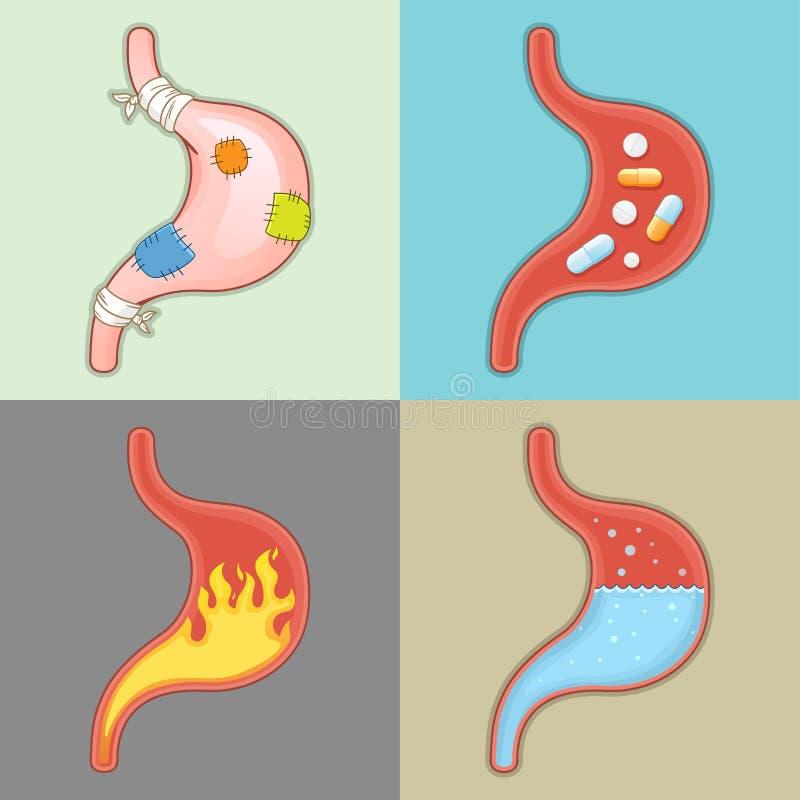Ανθρώπινο όργανο - πόνος στομαχιών ελεύθερη απεικόνιση δικαιώματος