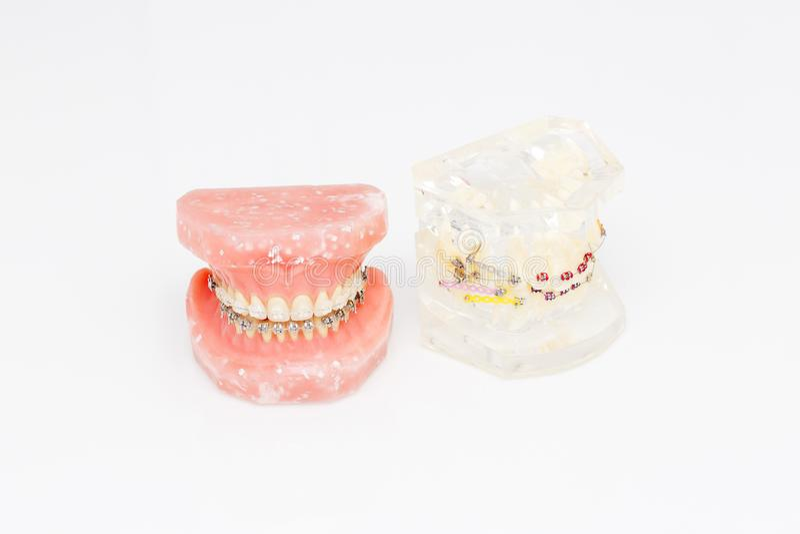 Ανθρώπινο orthodontic οδοντικό πρότυπο δοντιών με τα μοσχεύματα, οδοντικά στηρίγματα στοκ φωτογραφία με δικαίωμα ελεύθερης χρήσης