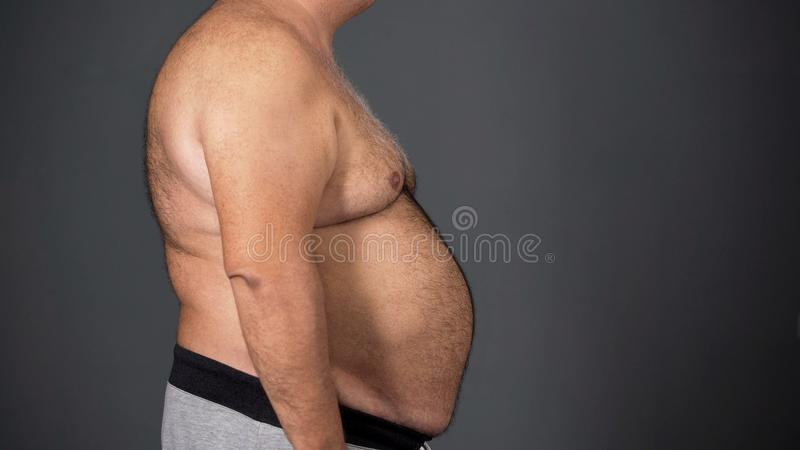 Ανθυγειινό άτομο με το παχύ tummy, ανθυγειινό αποτέλεσμα εθισμού τροφίμων, προβλήματα υγείας στοκ εικόνες με δικαίωμα ελεύθερης χρήσης
