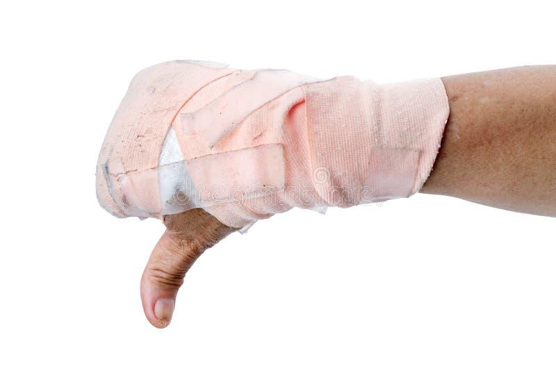 Αντίχειρας που παρουσιάζει κάτω με το χέρι με τους επιδέσμους που απομονώνονται στο λευκό στοκ φωτογραφία