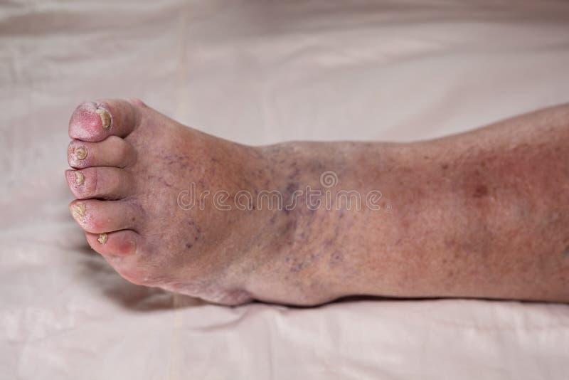 Ανώτερα προβλήματα ποδιών στοκ εικόνες
