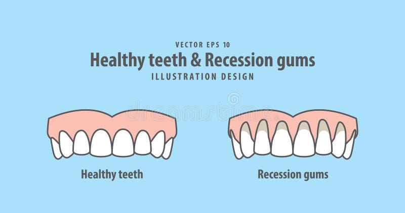 Ανώτερο υγιές διάνυσμα απεικόνισης δοντιών & γομμών υποχώρησης ελεύθερη απεικόνιση δικαιώματος