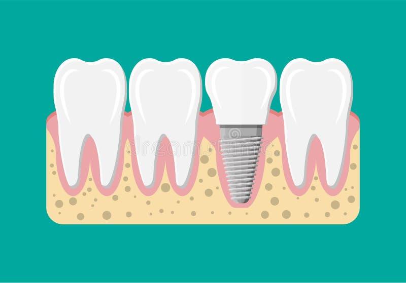 Αποκατάσταση δοντιών οδοντικό λευκό όψης στοιχείων απομονωμένο μόσχευμα ελεύθερη απεικόνιση δικαιώματος