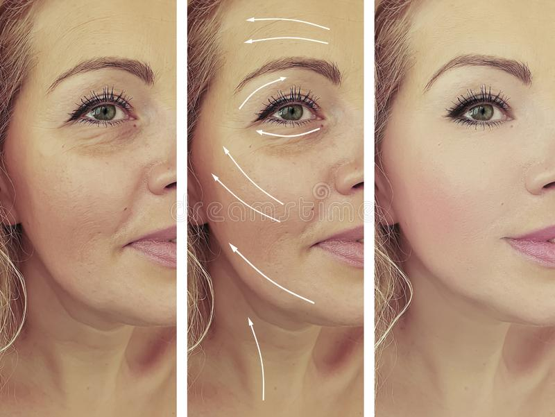 Αποτέλεσμα ρυτίδων προσώπου γυναικών πριν και μετά από το βέλος κολάζ διορθώσεων στοκ εικόνα με δικαίωμα ελεύθερης χρήσης